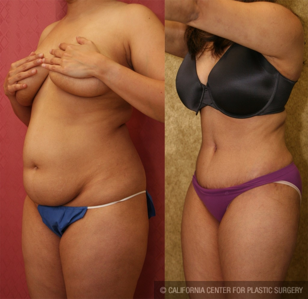 Tummy Tuck Small Size Before & After Patient #5745