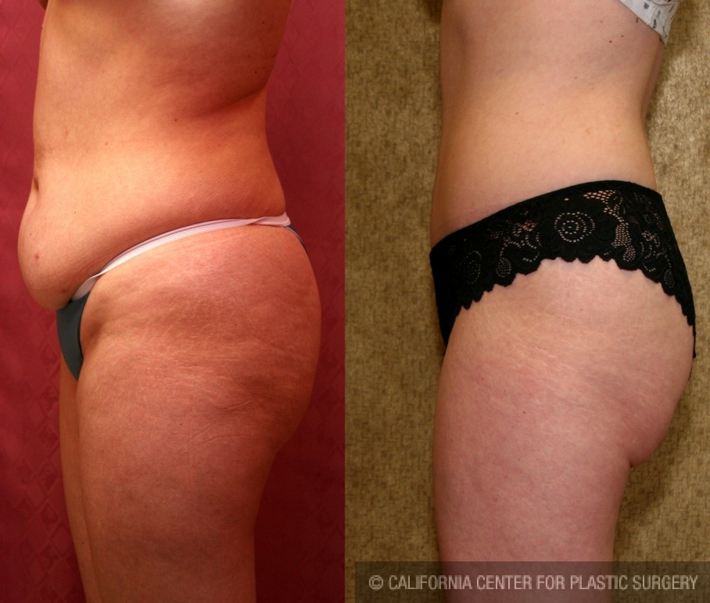 Tummy Tuck Small Size Before & After Patient #5737