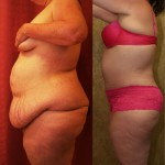 Tummy Tuck Plus Size Before & After Patient #5888