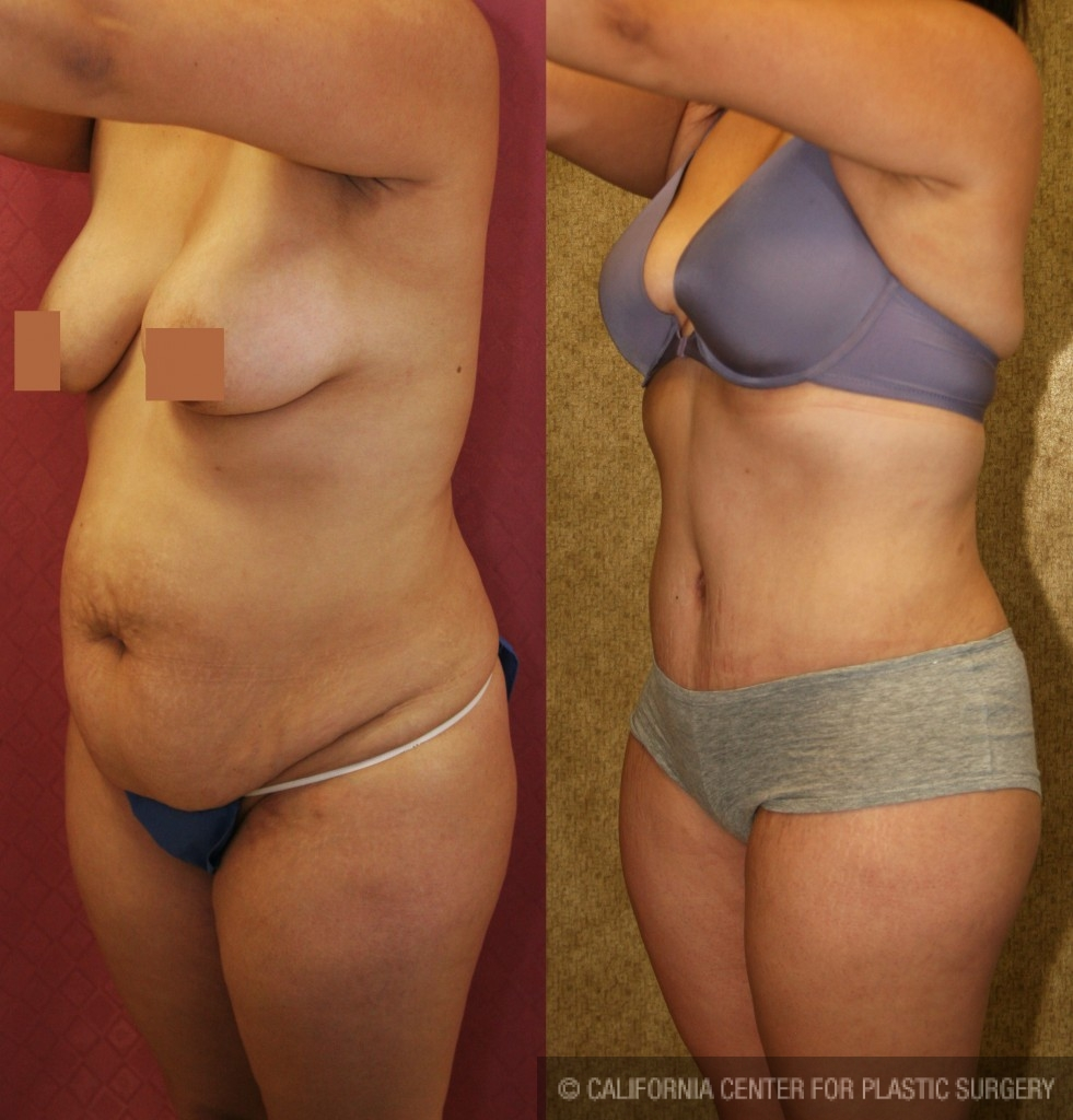Tummy Tuck Medium Size Before & After Patient #5803