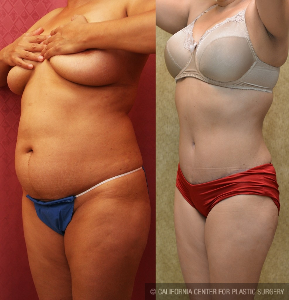 Tummy Tuck Medium Size Before & After Patient #5808