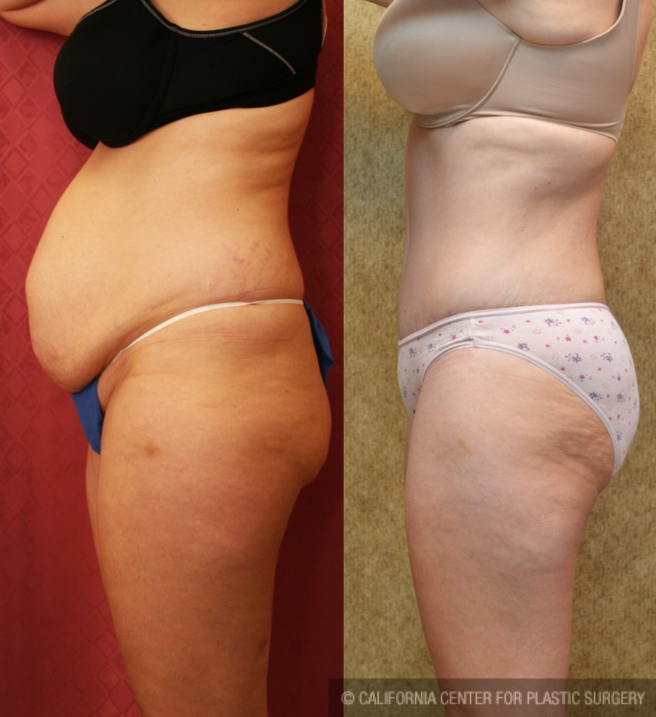 Tummy Tuck Medium Size Before & After Patient #5865