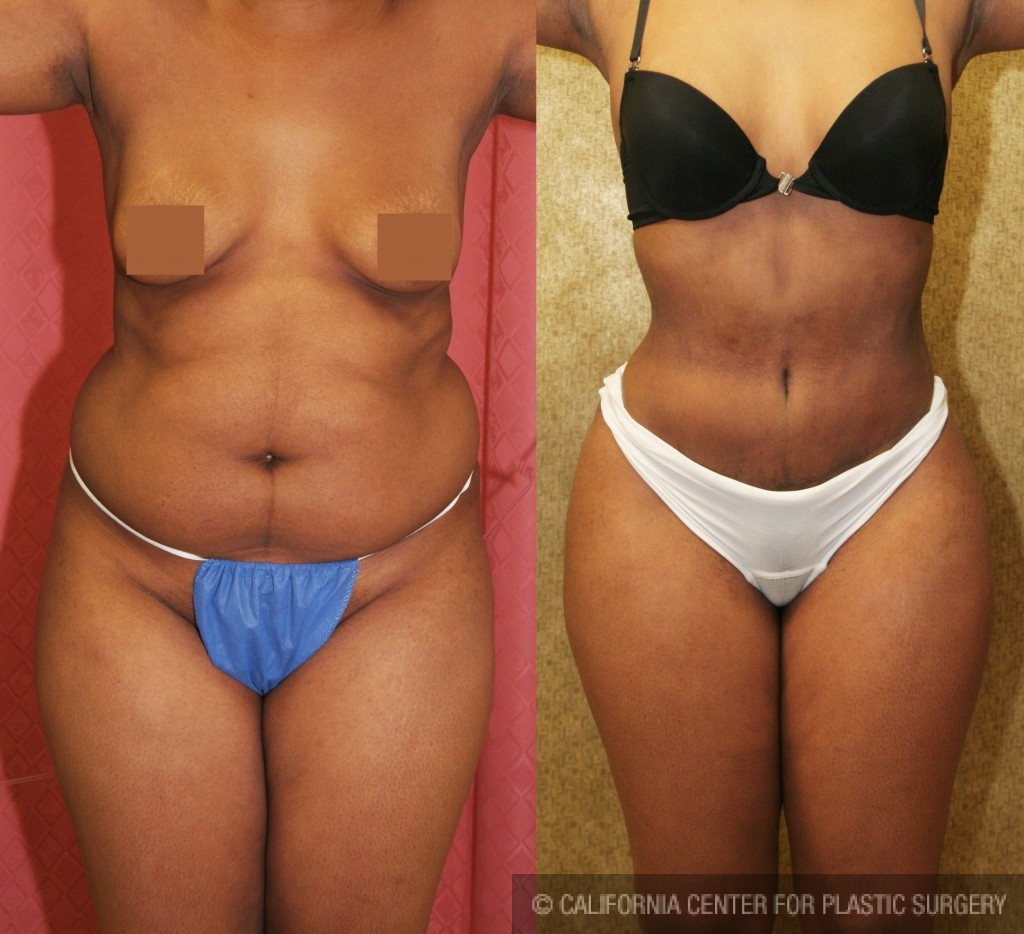 African American Tummy Tuck Before & After Patient #5953