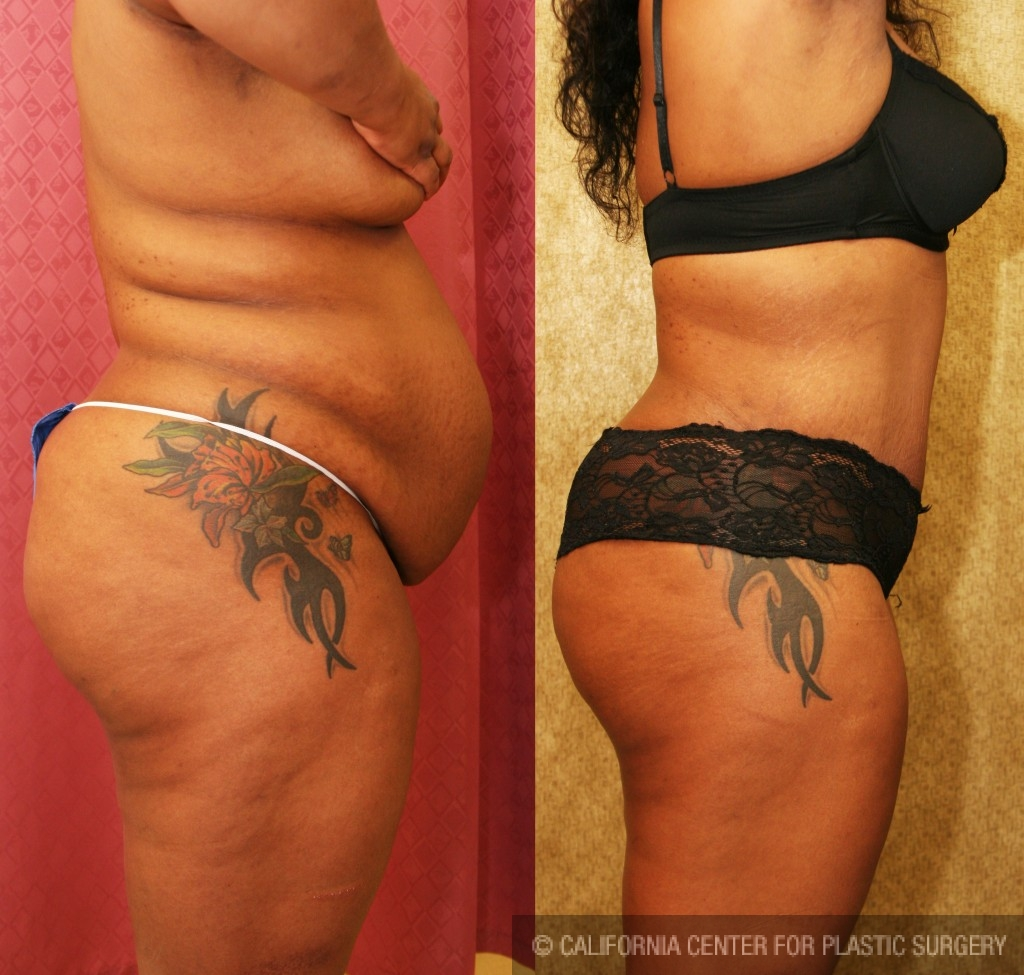 African American Tummy Tuck Before & After Patient #5929