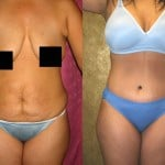 Tummy Tuck Small Size Before & After Patient #5990