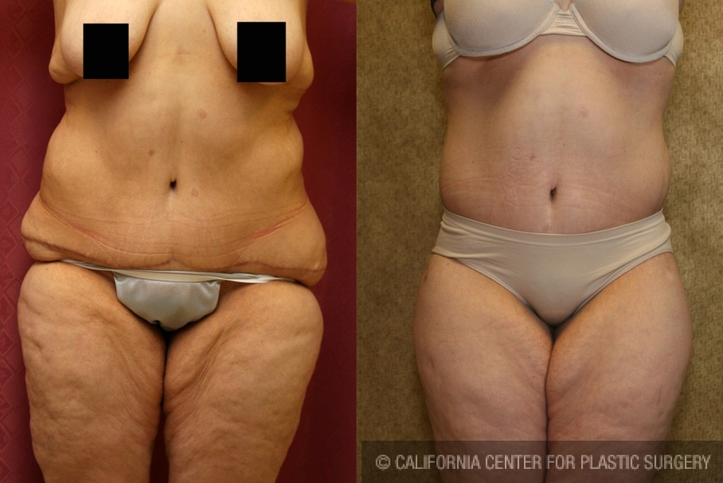 Body Lift Before & After Patient #6047