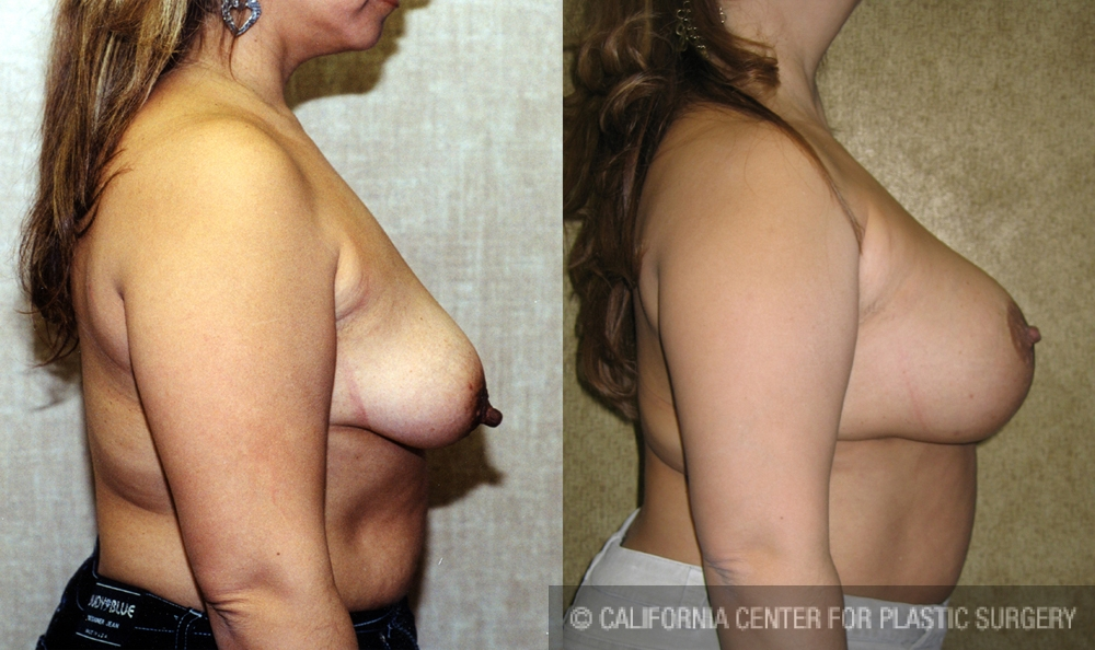 Full Breast Lift Before & After Patient #6937