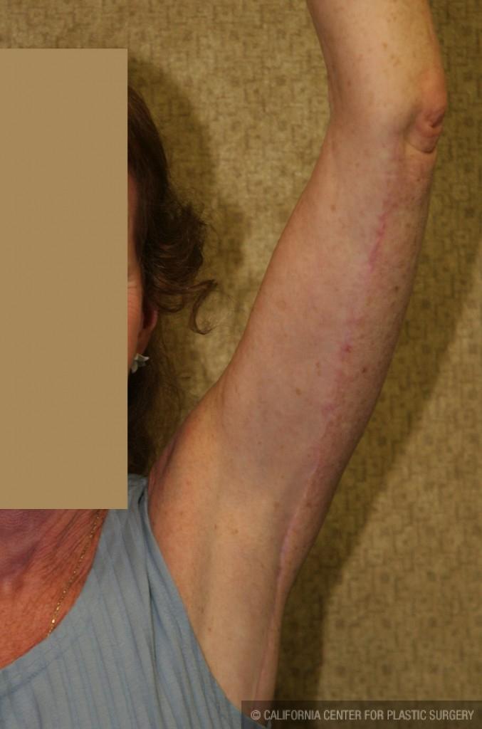 Arm Lift (Brachioplasty) Before & After Patient #6141