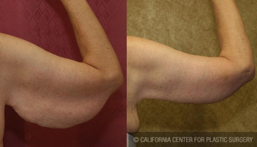 Arm Lift (Brachioplasty) Before & After Patient #6165
