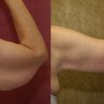 Arm Lift (Brachioplasty) Before & After Patient #6165