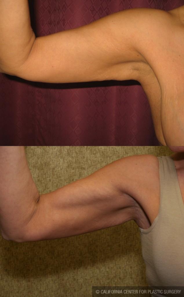 Arm Lift (Brachioplasty) Before & After Patient #6180