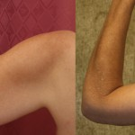 Arm Lift (Brachioplasty) Before & After Patient #6149