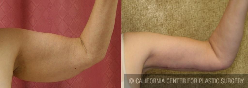 Arm Lift (Brachioplasty) Before & After Patient #6160