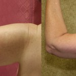 Arm Lift (Brachioplasty) Before & After Patient #6160