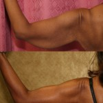 Arm Lift (Brachioplasty) Before & After Patient #6125