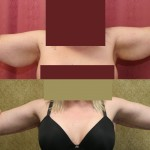 Arm Lift (Brachioplasty) Before & After Patient #6177