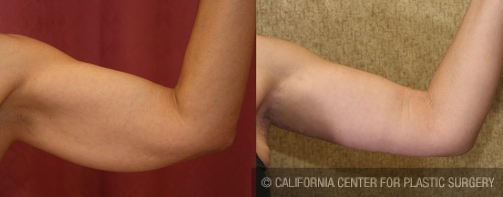 Arm Lift (Brachioplasty) Before & After Patient #6149