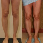 Calf Augmentation Before & After Patient #6879