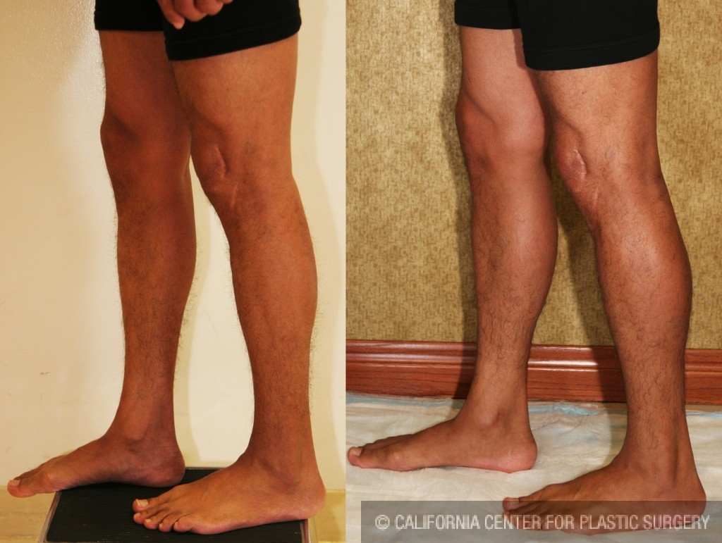 Calf Augmentation Before & After Patient #6874