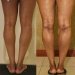 Calf Augmentation Before & After Patient #6892