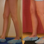 Calf Augmentation Before & After Patient #6887