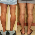 Calf Augmentation Before & After Patient #6883
