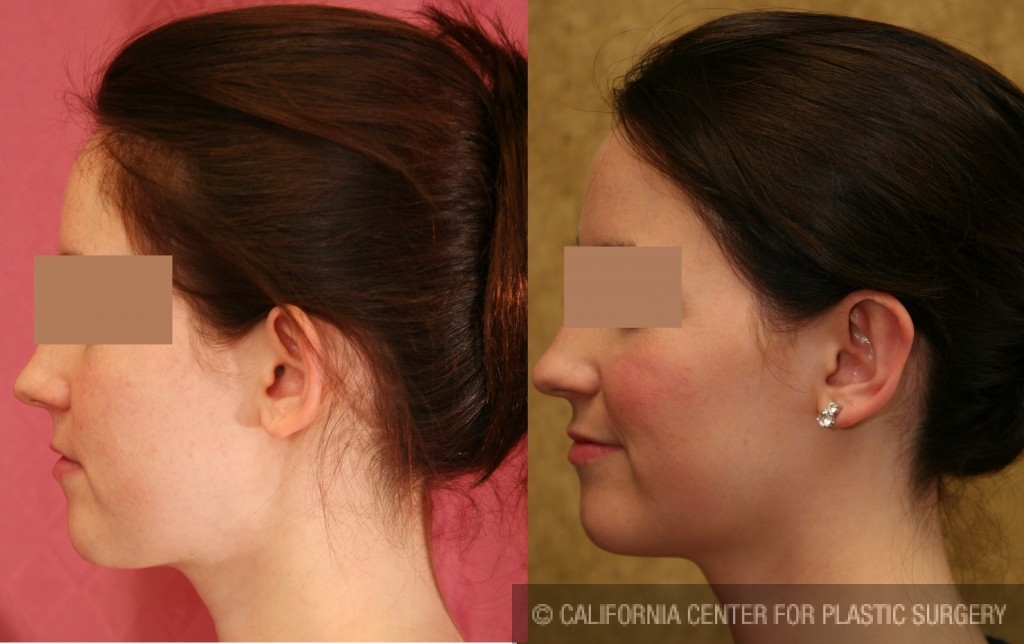 Ear (Otoplasty) Before & After Patient #6439