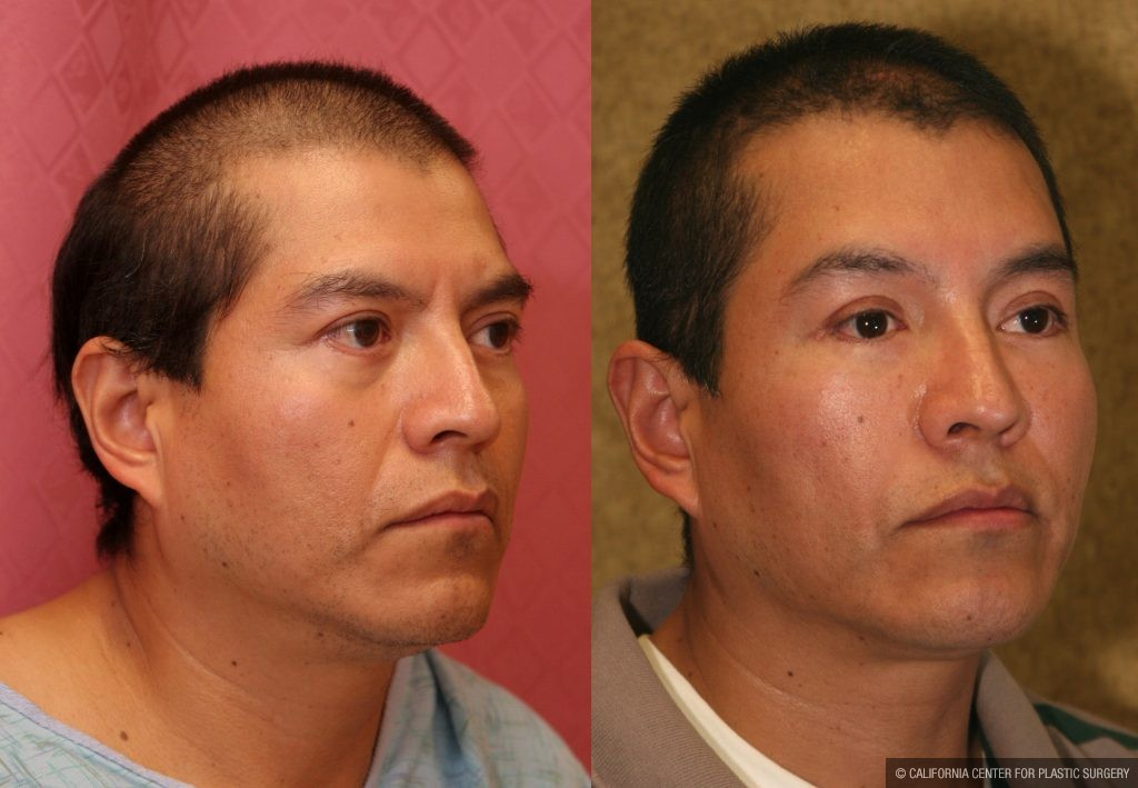 Facial Cosmetic Surgery Before & After Patient #10460