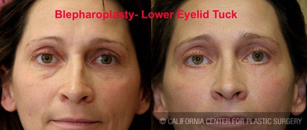 Eyelid (Blepharoplasty) Before & After Patient #6523