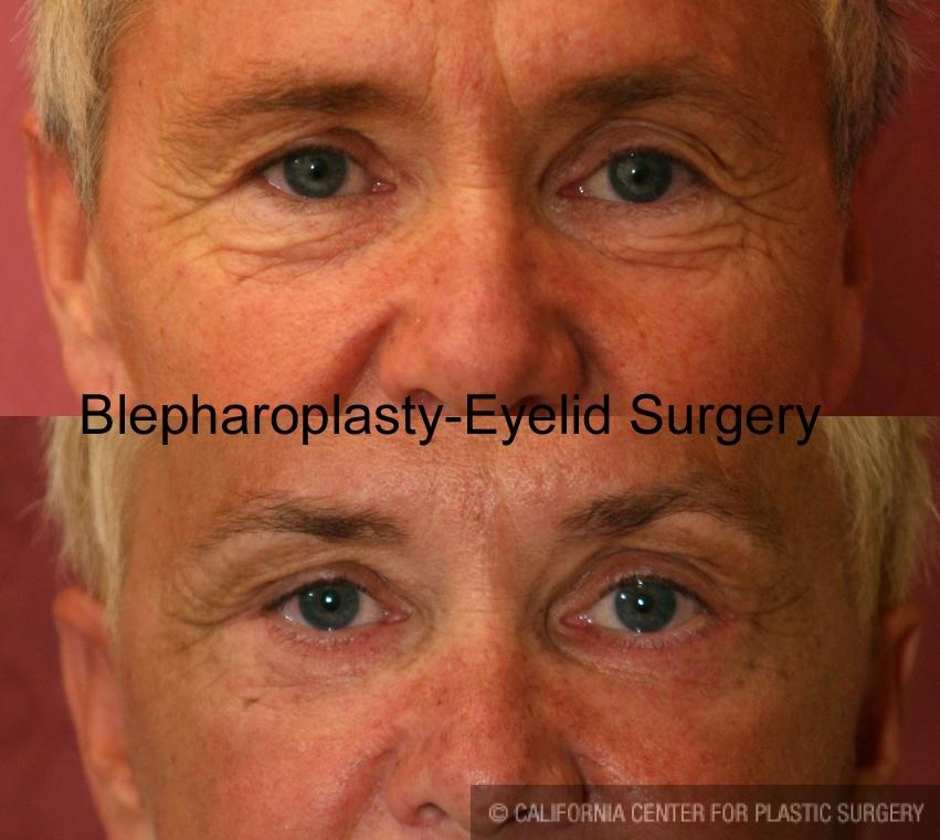 Eyelid (Blepharoplasty) Before & After Patient #6559