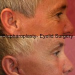 Eyelid (Blepharoplasty) Before & After Patient #6559