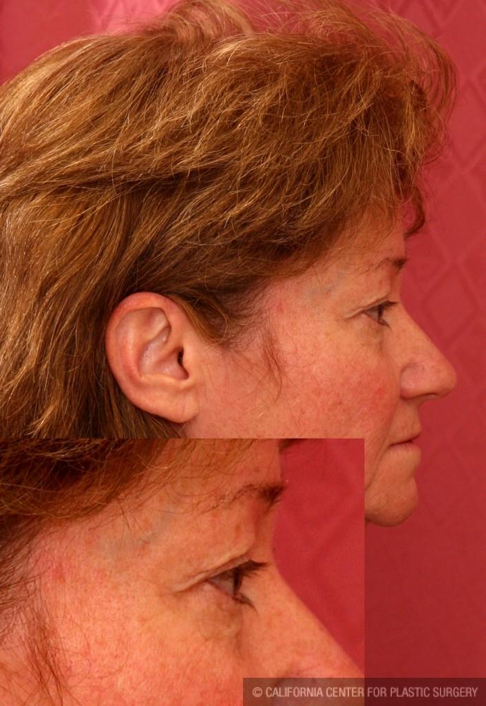 Eyelid (Blepharoplasty) Before & After Patient #6528