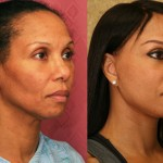 Mid-Facelift Before & After Patient #6773