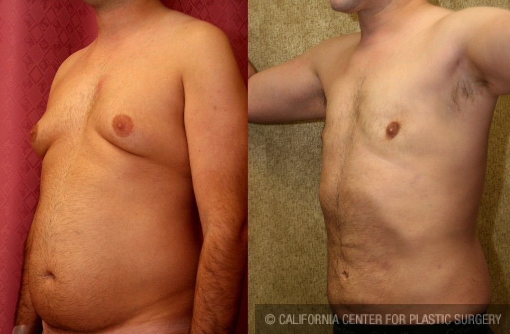 Male Breast Reduction Before & After Patient #6809