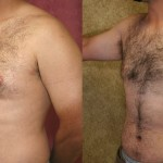 Male Breast Reduction Before & After Patient #6820