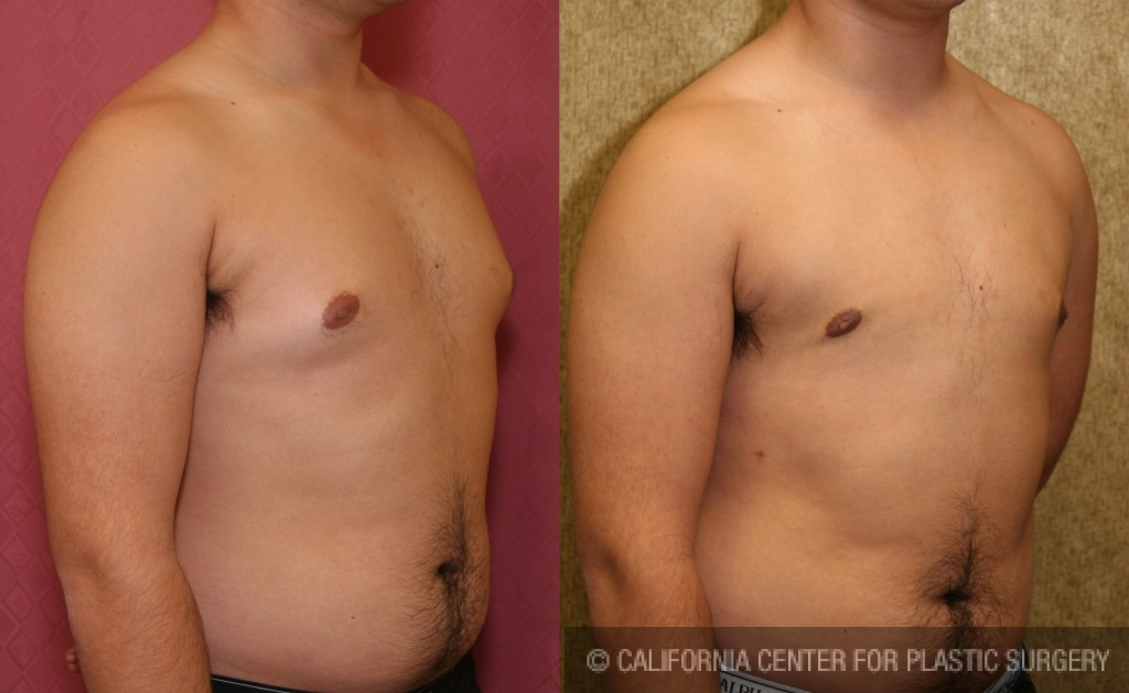 Male Breast Reduction Before & After Patient #6852