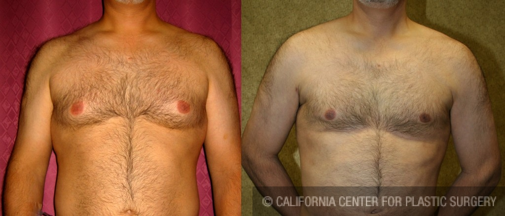 Male Breast Reduction Before & After Patient #6843