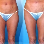 Liposuction Thighs Before & After Patient #6701