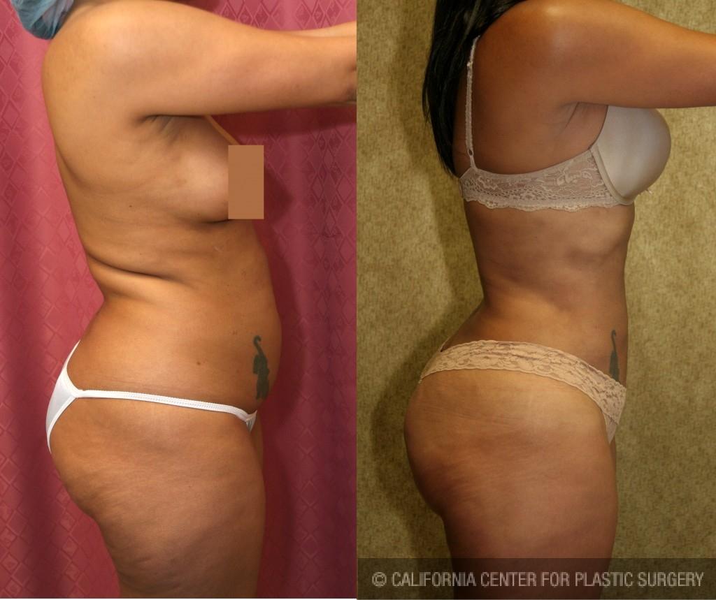 Liposuction Abdomen Medium Before & After Patient #5552