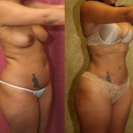 Liposuction Abdomen Medium Before & After Patient #5552
