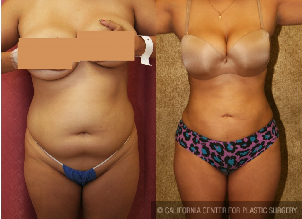Liposuction Abdomen Medium Before & After Patient #5544