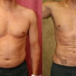 Male Liposuction Abdomen Before & After Patient #5646