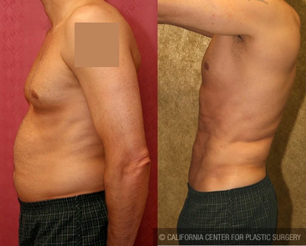 Male Liposuction Abdomen Before & After Patient #5646