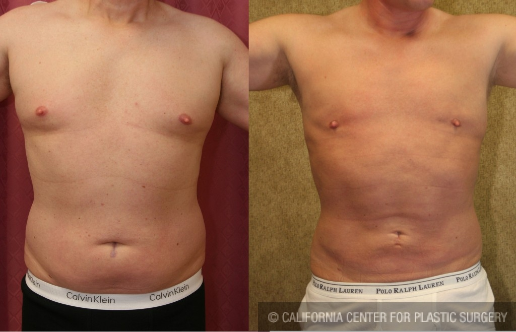 Male Liposuction Abdomen Before & After Patient #5651