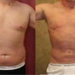 Male Liposuction Abdomen Before & After Patient #5651