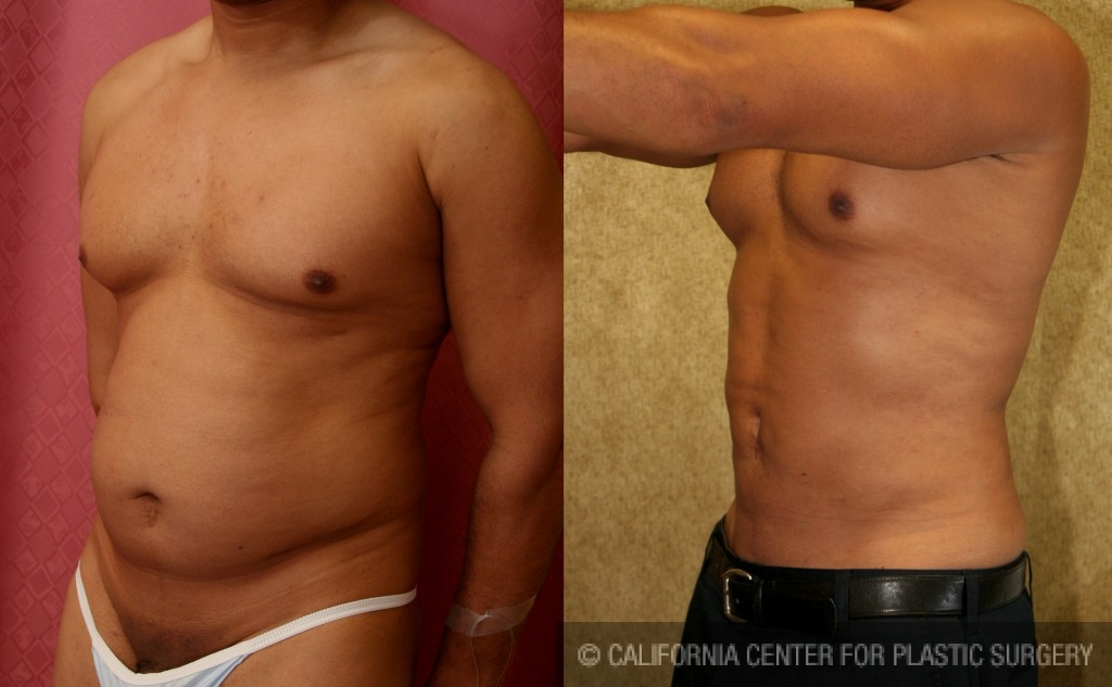 Male Liposuction Abdomen Before & After Patient #5656