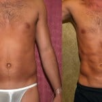 Male Liposuction Abdomen Before & After Patient #5614