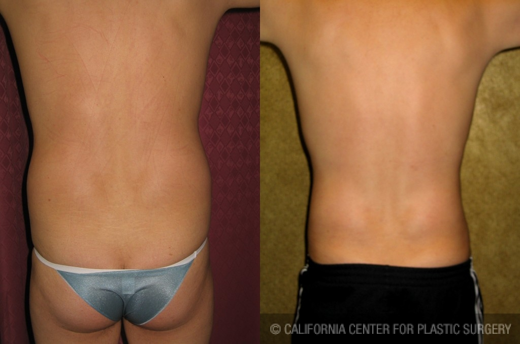 Male Liposuction Abdomen Before & After Patient #5629