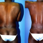 Male Liposuction Abdomen Before & After Patient #5638