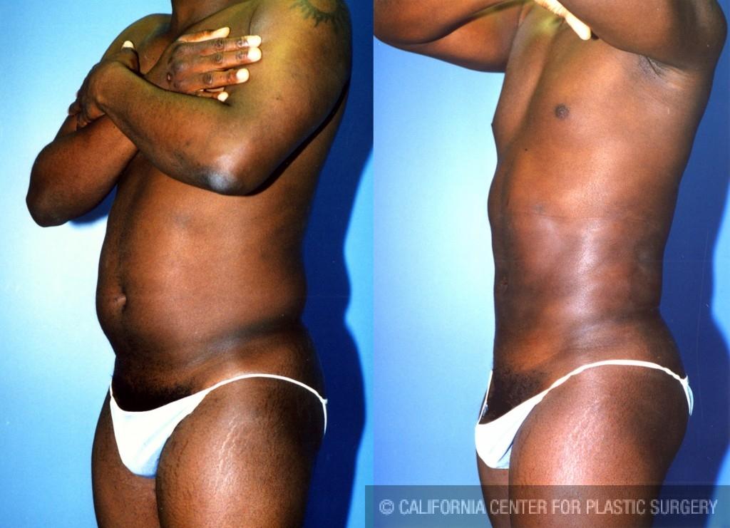 Male Liposuction Abdomen Before & After Patient #5638